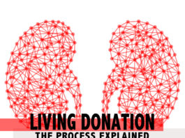 living kidney donation - kidneytalk