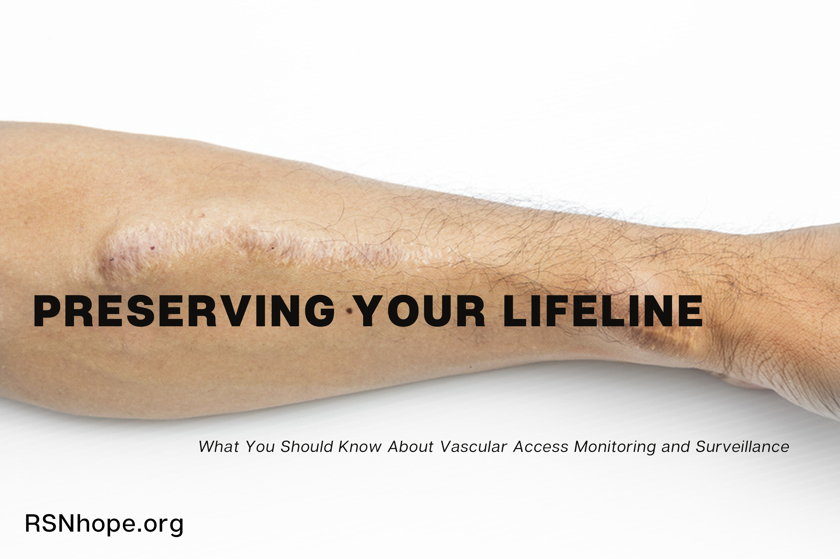 Preserving Your Lifeline What You Should Know About Vascular Access