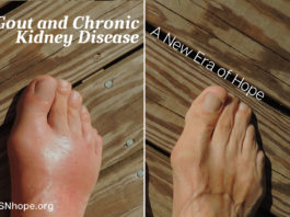 Gout and CKD Patients - Gout and Chronic Kidney Disease