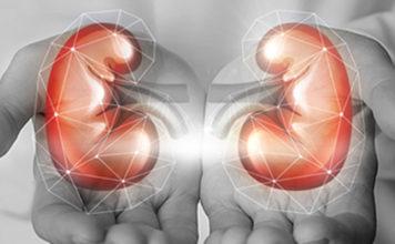 Kidney-Transplant-RSN