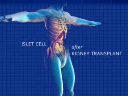 islet cell transplant - kidney talk
