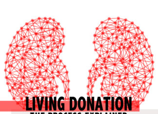 living kidney donation - kidneytalk